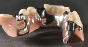 Zubní laboratoř vám zhotoví špičkové zubní náhrady